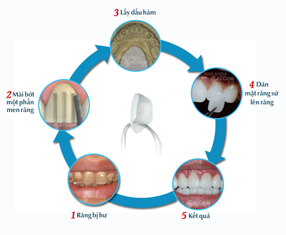 Mặt dán sứ diện mạo mới cho răng bạn