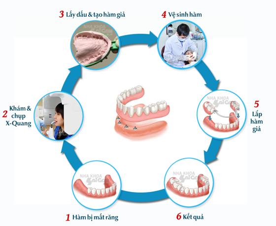 Hàm giả tháo lắp phương pháp phục hình răng tiết kiệm