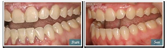kết quả sau khi lấy cao răng