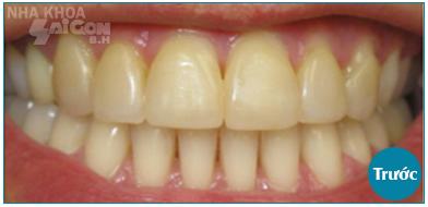 màu răng trước khi tẩy trắng
