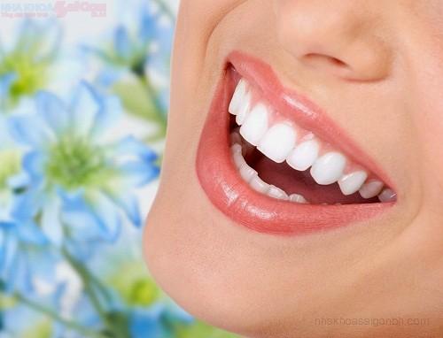 Chi phí chỉnh nha niềng răng thẩm mỹ giá bao nhiêu tiền?