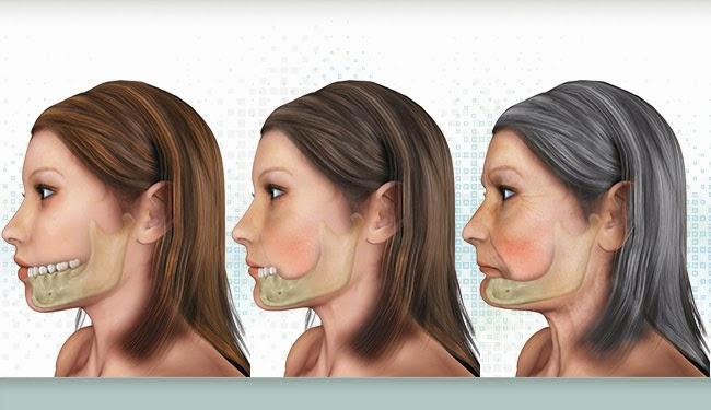 Các dạng tiêu xương hàm ảnh hưởng đến cấy ghép implant