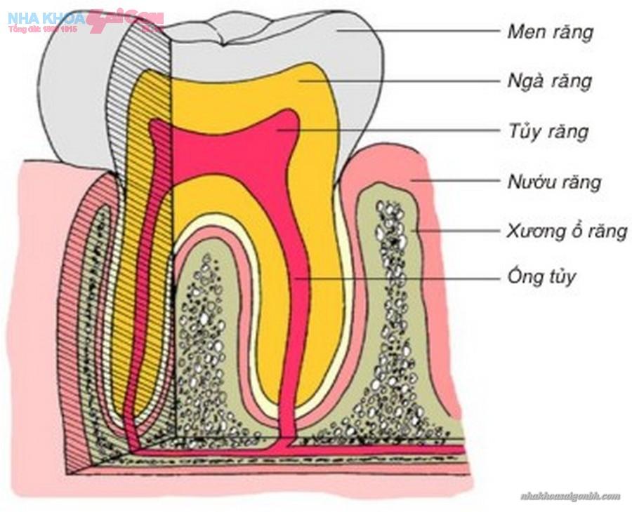 Men răng được tẩy trắng là do đâu