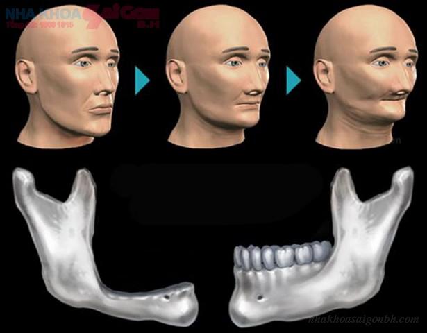 Những điều cần biết về ghép xương khi cấy ghép implant