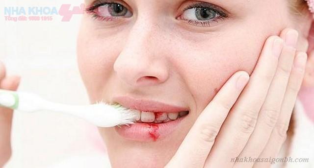 Những biến chứng có thể xảy ra khi cấy ghép implant