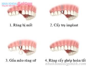 Trường hợp có thể cấy ghép implant trong 1 ngày