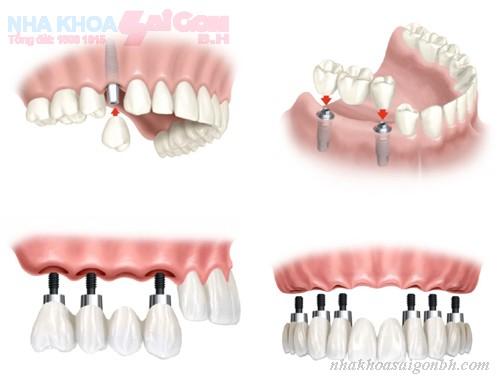 Có phải số lượng implant phụ thuộc vào số lượng mất răng