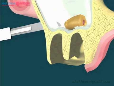 Nâng xoang hàm khi cấy ghép implant