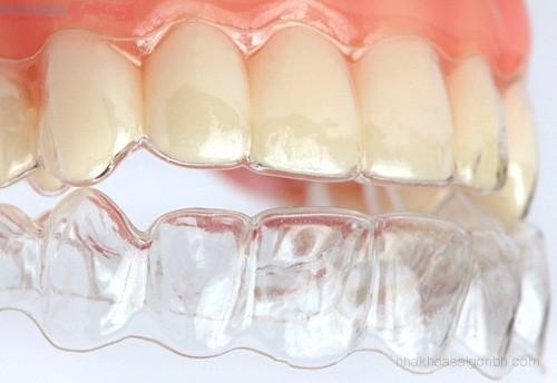 Chỉnh nha niềng răng invisalign có tốt không?