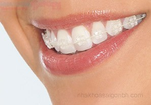 Niềng răng mắc cài sứ dây trong