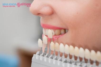 So sánh màu răng trước khi tẩy trắng răng