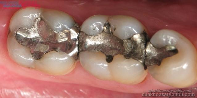 Trám răng amalgam có gây nguy hại gì hay không?
