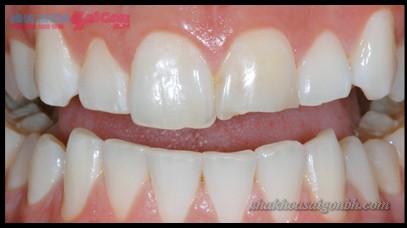 Trám răng bị gãy
