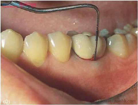 Một vài triệu chứng có thể gặp sau khi cấy ghép implant