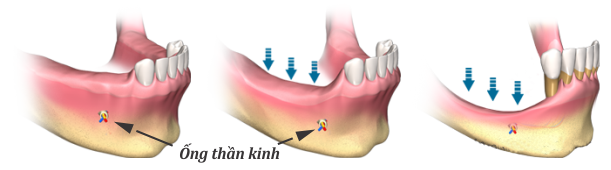 Ghép xương trong cấy ghép implant cần phẫu thuật không?