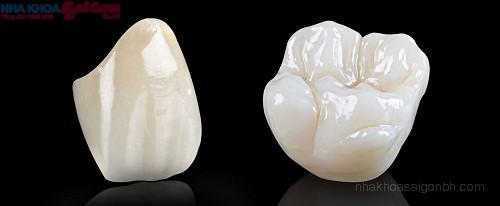 bọc răng sứ titan giá khoảng bao nhiêu tiền?