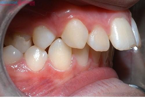 Khi nào phẫu thuật thẩm mỹ răng vẩu