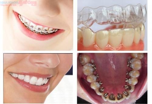 Chỉnh nha niềng răng chữa hô móm lệch lạc?
