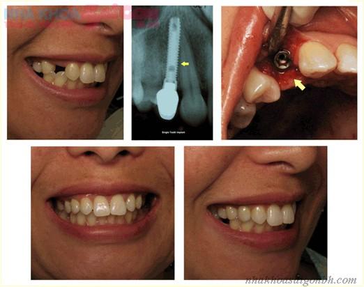 Cách khắc phục biến chứng sau khi cấy ghép implant?