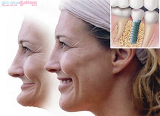 Sau khi cấy ghép implant khuôn mặt thay đổi như thế nào?
