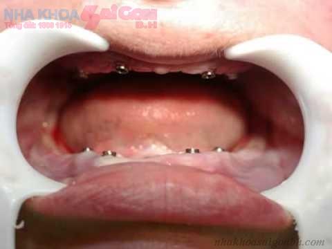 Mất toàn bộ răng thì cấy ghép bao nhiêu implant?