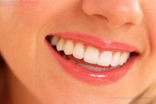 Chỉnh nha niềng răng hay bọc răng sứ thẩm mỹ