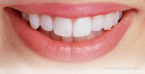 Bọc răng sứ cho răng mọc lệch có được không?