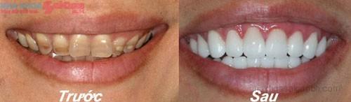 Trước và sau khi bọc răng sứ cho răng bị nhiễm màu tetracylin