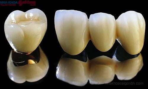 Bọc răng sứ kim loại thường có tốt hay không?