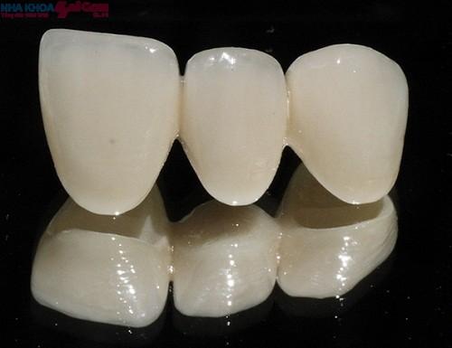 Thẩm mỹ với phương pháp bọc răng sứ không kim loại