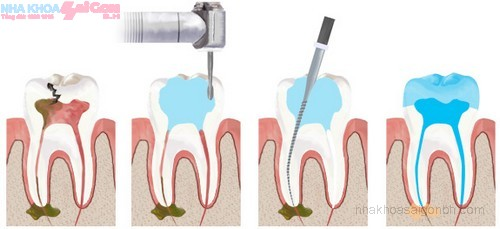 Lấy tủy răng giá hết bao nhiêu tiền?