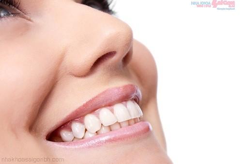 Ưu điểm của phương pháp bọc răng sứ titan