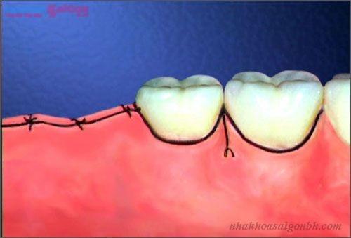 Cấy ghép implant bao lâu thì cắt chỉ?