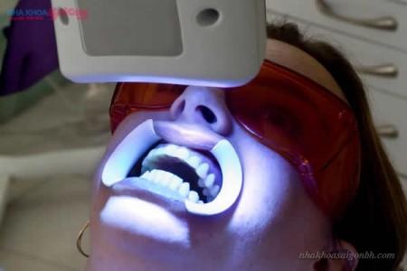 Ánh sáng kích thích thuốc tẩy trắng răng tác động nhanh hơn