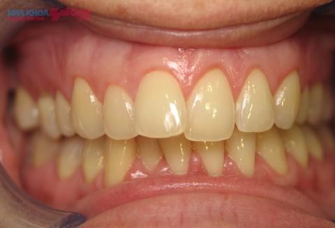 răng bị nhiễm màu thức phẩm