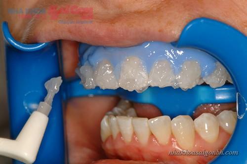 sự khác biệt tẩy trắng răng Brite Smile