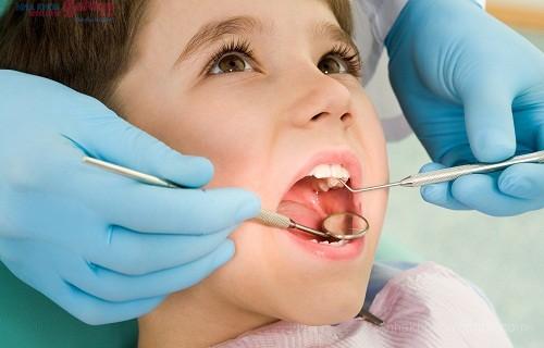 Chỉnh nha niềng răng bằng mắc cài sứ cho trẻ em