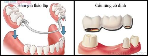 Trồng răng giả giải pháp cho những trường hợp bị mất răng