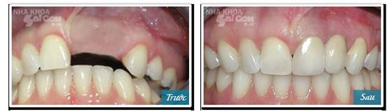 Vật dụng nên có để chăm sóc răng khi cấy ghép implant