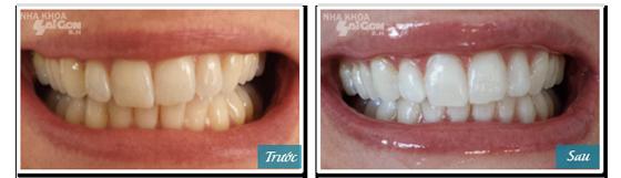 Giải đáp tẩy trắng răng duy trì được bao lâu?