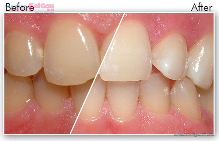 Các cách làm trắng răng tự nhiên chỉ cho kết quả tạm thời