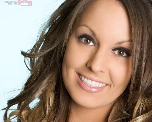 Bọc răng sứ có niềng răng chỉnh nha được hay không?
