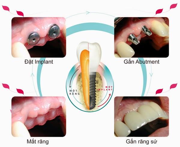 Hỏi đáp chi tiết về dịch vụ cấy ghép implant nha khoa