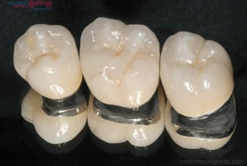 Bọc răng sứ titan có bị viền đen ở nướu không?