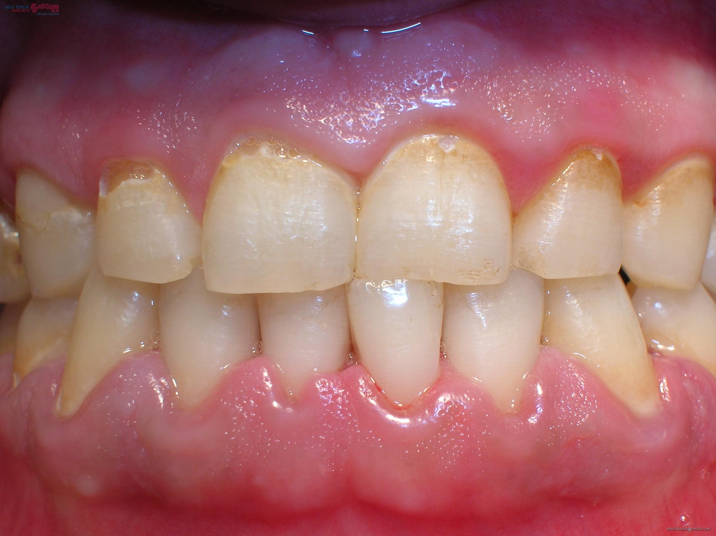 tẩy trắng răng khi bị nha chu