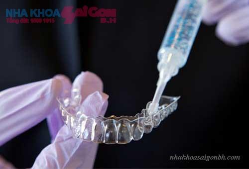 Tẩy trắng răng tại nhà có an toàn hay không?