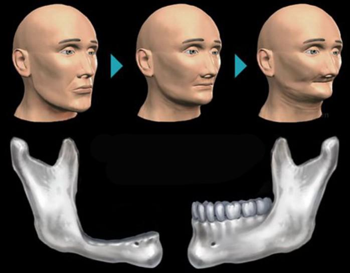 Phải làm thế nào để cấy ghép implant khi bị tiêu xương hàm?