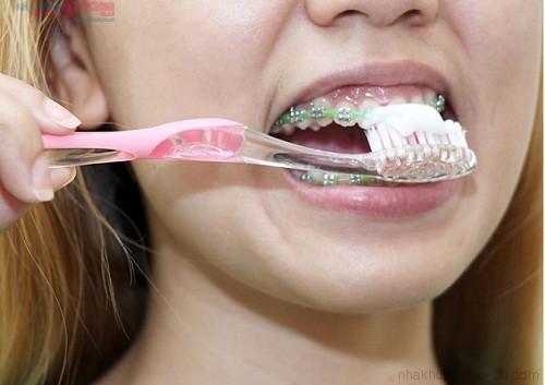 Những lưu ý trước khi niềng răng mắc cài
