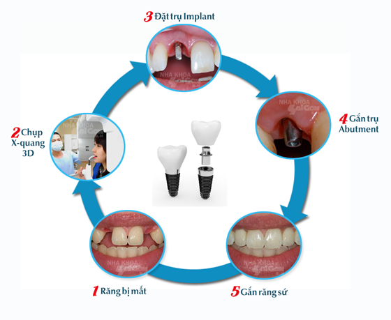 Trồng răng mất bằng cấy ghép implant có ưu điểm gì?