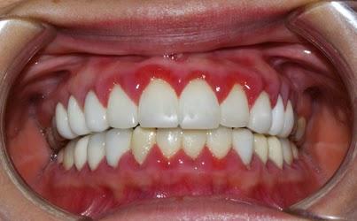 Lợi – hại từ việc sử dụng sản phẩm làm trắng răng